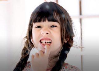 Mengatasi gigi gigis pada anak
